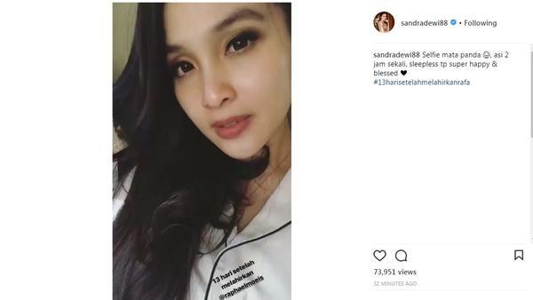 Sandra Dewi alami perubahan di wajah sejak melahirkan Raphael Moeis (Foto: Instagram)